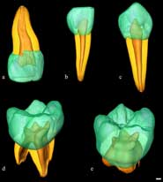 Virtual 3D reconstruction of four deciduous and one permanent teeth assessed for linear, surface, and volumetric tissue proportions